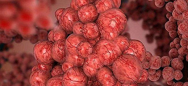 Fibroza pulmonara - imagine reprezentativa